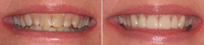 ellen garbarino before and after pictures of cosmetic dentistry from crabtree dental
