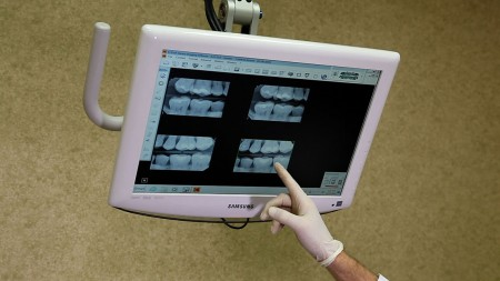 hand pointing at digital xray monitor