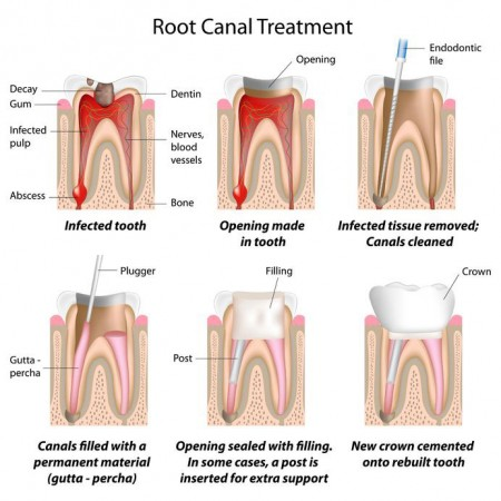 get a root canal from our Fulshear dentist to relieve tooth pain