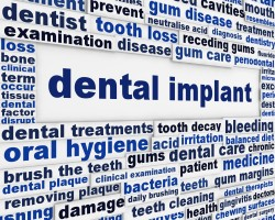 dental implant with other related keywords