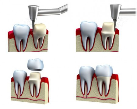 get dental crowns to restore your smile from your Katy dentist